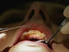Macie problemy z dostępem do dentysty w UK? Ta matka dostała najdziwniejszą poradę ws. zębów swojego dziecka