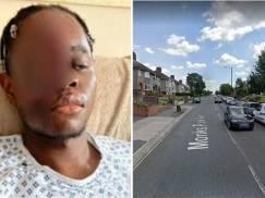 Pracownik NHS ofiarą brutalnego rasistowskiego ataku! Wjechał w niego rozpędzony samochód