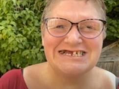 Brytyjka nie mogła umówić się na wizytę u dentysty, więc... sama wyrwała sobie 11 zębów [WIDEO]